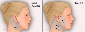 mini-face-lift